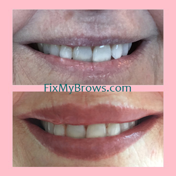 Bett Lips Before_After