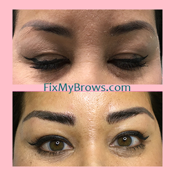 Tiffany Both Brows Before_After